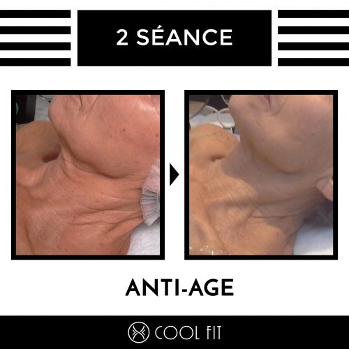 Cool-Fit-Resultats-Anti-age-1-seance-MCG-2
